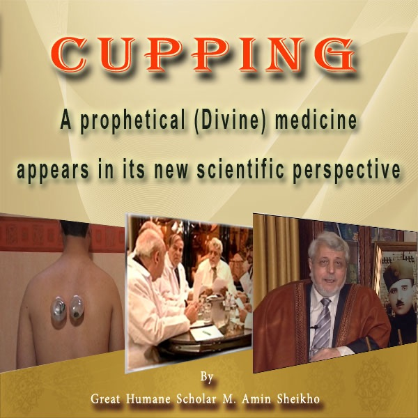 The right method of Cupping therapy