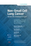 Non-Small Cell Lung Cancer Across The Continuum Of Care