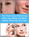 The Truth About Removing Skin Tag Warts And Mole Safely Naturally And Fast