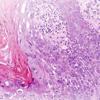 TNM Urology