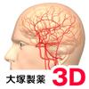 脳血管3Dイラスト