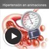 Hipertensión en animaciones