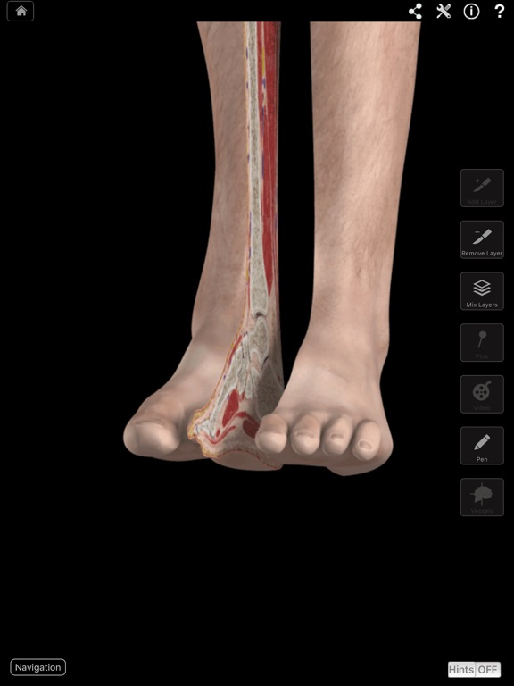 Ankle and Foot Pro III Screenshots