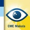 CME Makula