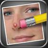 ニキビ消しゴム (Pimple Eraser)