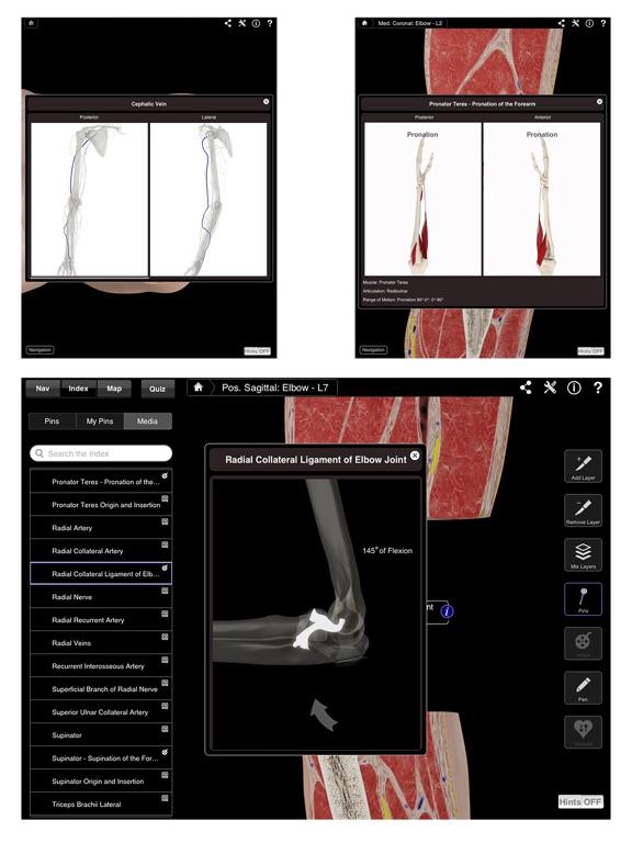Elbow Pro III Screenshots
