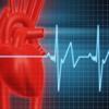 EKG Clínico