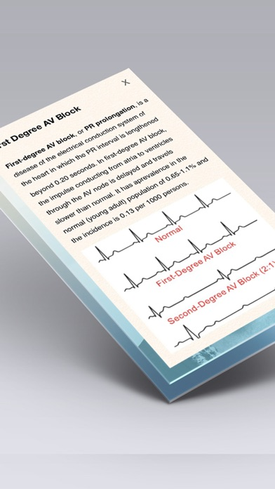 Choosing the best ECG book ECG made easy or completely ECG learning