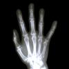 X-Ray Vision (Visão de raios X)